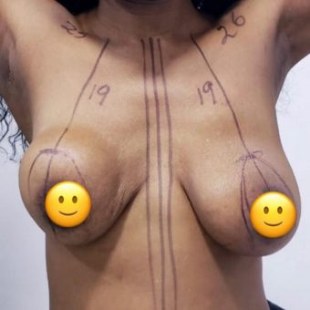 breast uplift and breast augmentation