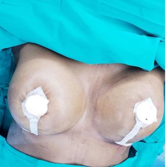 breast uplift and breast augmentation2